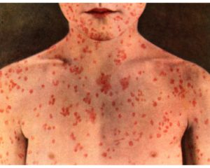 Measles outbreak reported in Diamer District of Gilgit-Baltistan